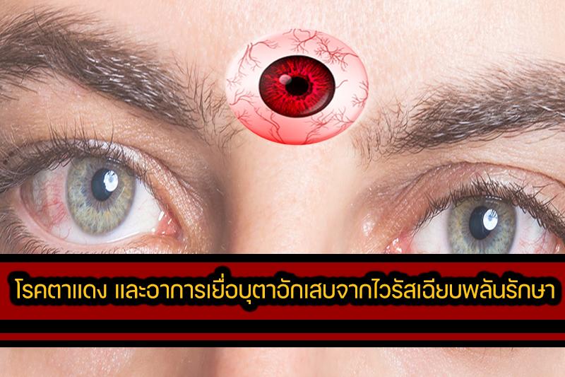 โรคตาแดง